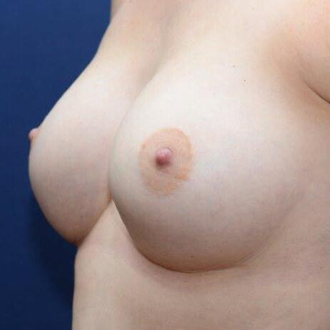 anatomisches Implantat, 400ml