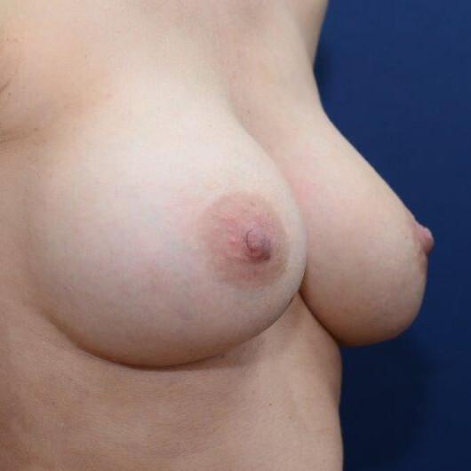 querovales Implantat, nach Schwangerschaft, 360ml