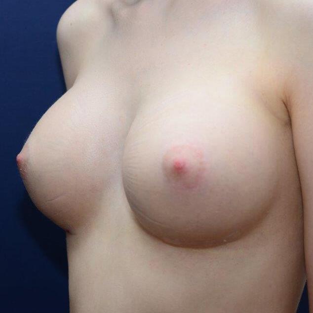 rundes Implantat, 340ml